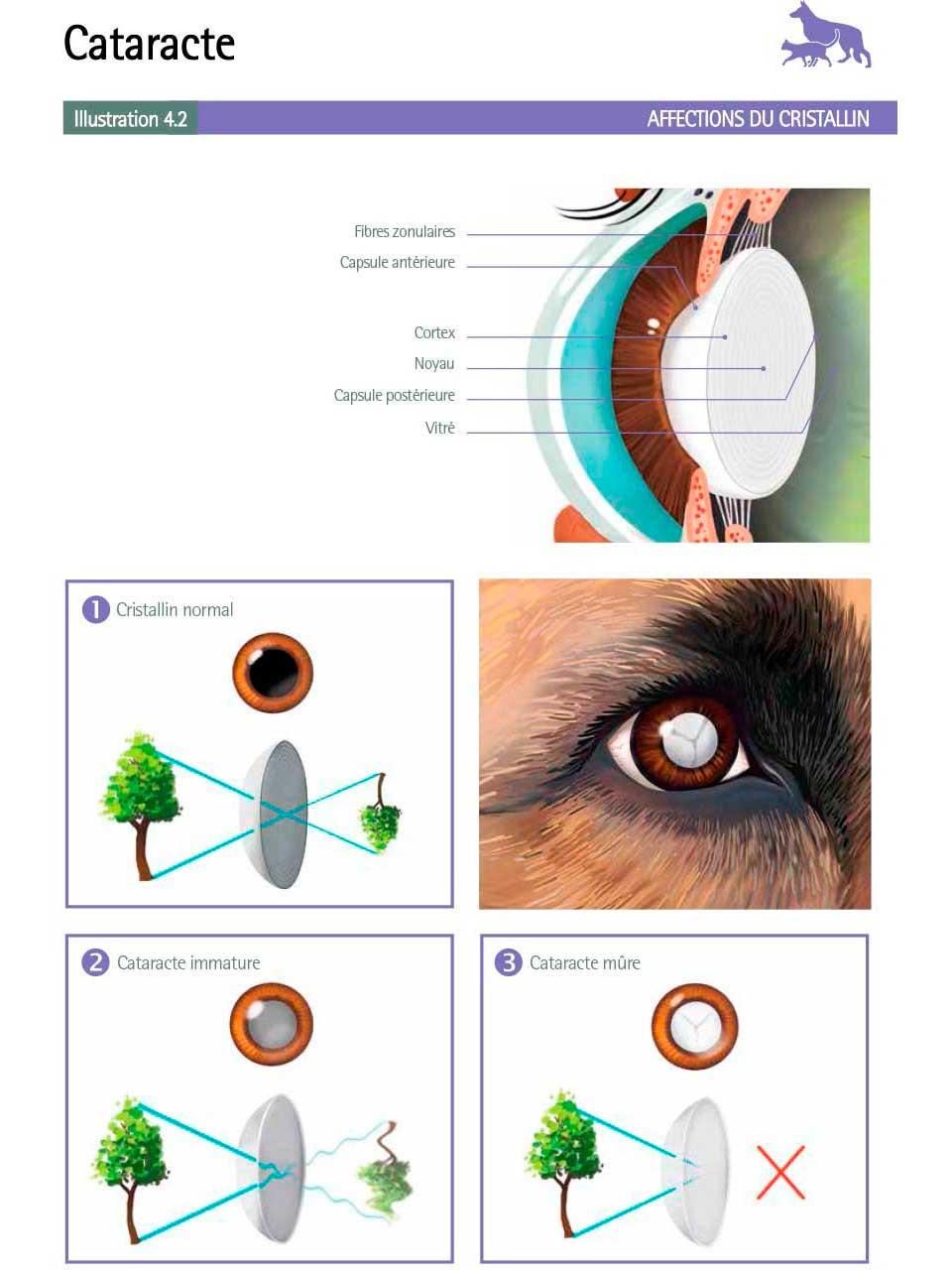 Cataracte (1)