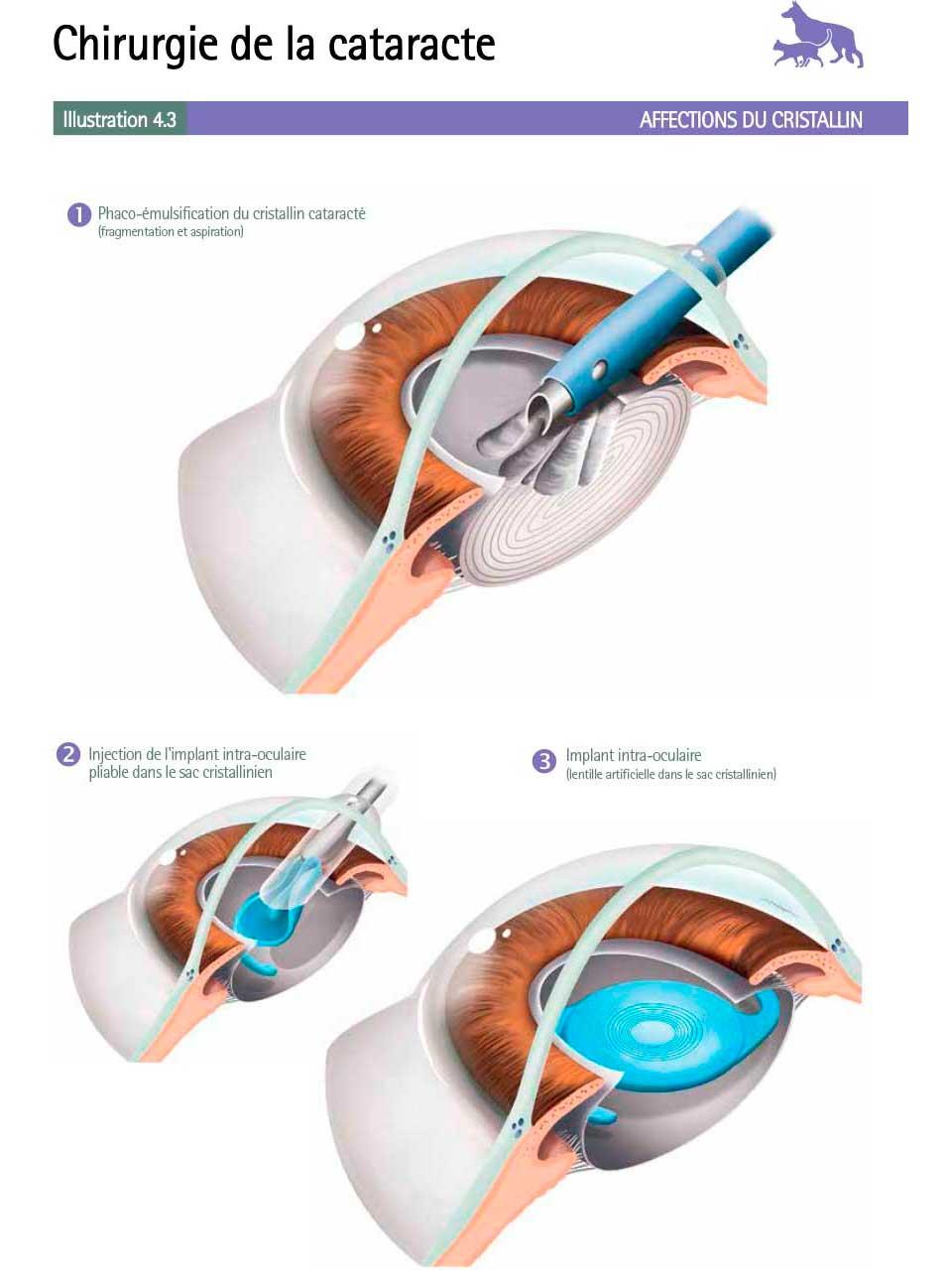 ChirurgieCataracte