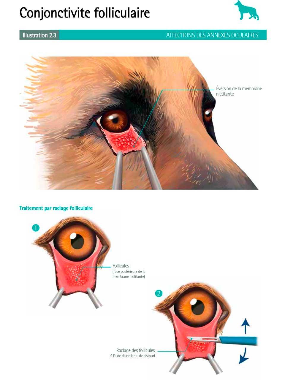 ConjonctiviteFolliculaire