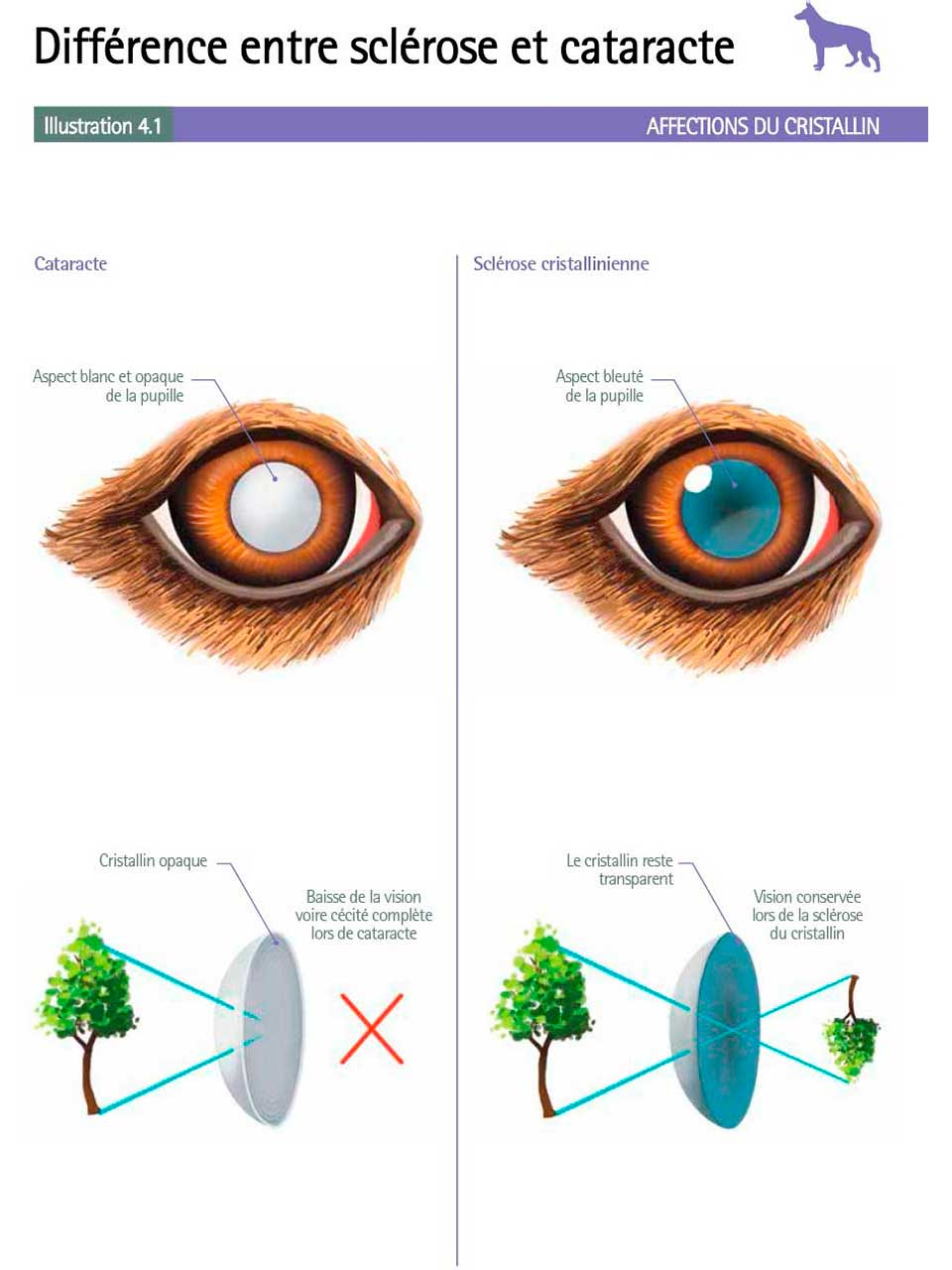 DifferenceScleroseCataracte